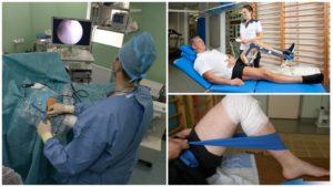 Артроскопия коленного сустава по полису омс