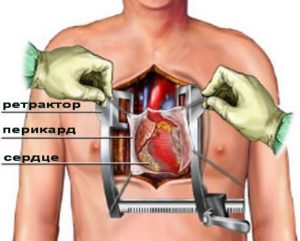 Акш операция на сердце инвалидность